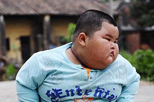 Проблема лишнего веса у ребенка